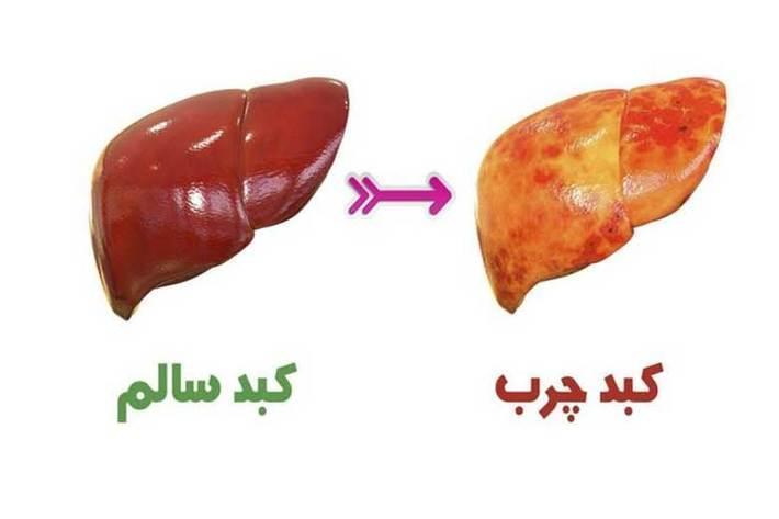 راههای مقابله با کبد چرب ، کدام غذاها را نخوریم