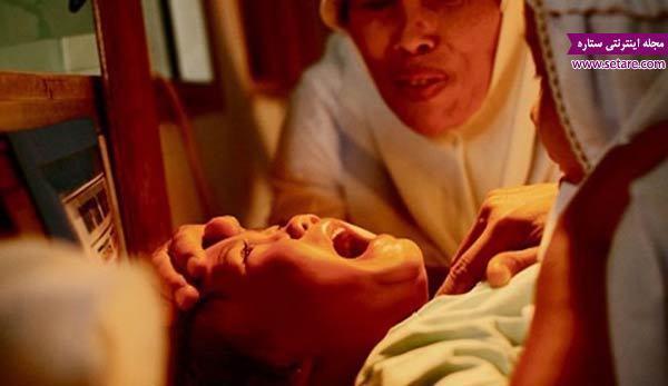 ختنه زنان به چه صورت انجام می گردد و دلیل آن چیست؟